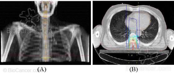 Tratamiento con radioterapia de una compresión medular. (A) Reconstrucción radiográfica digital. (B) Curvas de isodosis